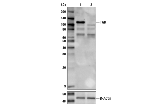 Western blot analysis of HEK293 Cell Extracts, untreated (-) or FAK knock-out (+) using FAK Antibody, #3285, (upper) or #8457 β-Actin (D6A8) Rabbit mAb (lower).