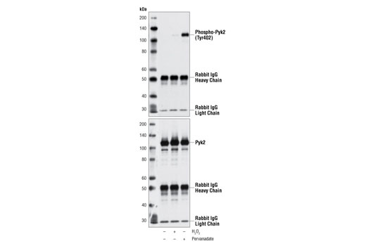 Immunoprecipitation of Pyk2 from Ramos cells, untreated, H<sub>2</sub>O<sub>2</sub>-treated, or Pervanadate-treated, using Pyk2 Antibody #3292, followed by Western blot with Phospho-Pyk2 (Tyr402) Antibody (upper), or Pyk2 Antibody #3292 (lower).