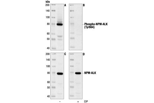 Polyclonal Antibody - Phospho-ALK (Tyr1604) Antibody - Immunoprecipitation, Western Blotting, UniProt ID Q9UM73, Entrez ID 238 #3341 - Rtk