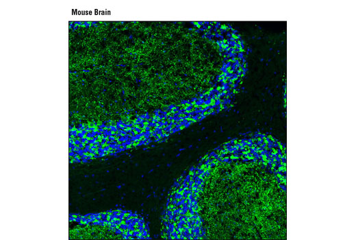 Confocal immunofluorescent analysis of mouse brain using GAD2 (D5G2) XP<sup>®</sup> Rabbit mAb (green). Blue pseudocolor = DRAQ5<sup>®</sup> #4084 (fluorescent DNA marker).