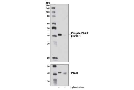 Western blot analysis of extracts from NIH/3T3 cells, untreated or λ phosphatase-treated, using Phospho-PKA C (Thr197) (D45D3) Rabbit mAb (upper) or PKA C-α Antibody #4782 (lower).