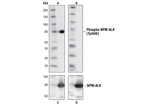 Western blot analysis of extracts from Sup-M2 cells, using Phospho-ALK (Tyr1586) Antibody (A,B) or ALK Antibody (C,D). The phospho-specificity of the antibody was characterized by treating the membrane with calf intestinal alkaline phosphatase (CIP) (B,D) after western transfer.