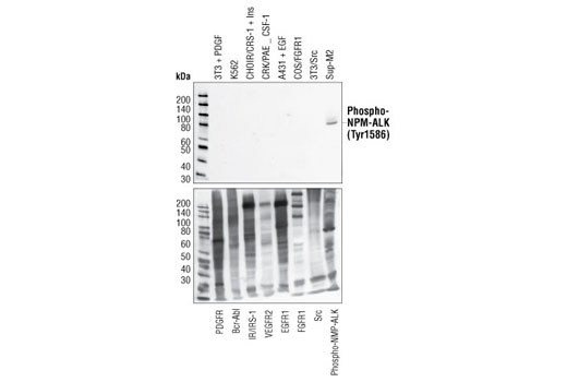 Polyclonal Antibody - Phospho-ALK (Tyr1586) Antibody - Western Blotting, UniProt ID Q9UM73, Entrez ID 238 #3343, Antibodies to Kinases