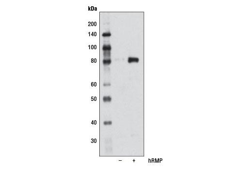 Polyclonal Antibody - RMP Antibody - Immunoprecipitation, Western Blotting, UniProt ID O94763, Entrez ID 8725 #5844, Apoptosis