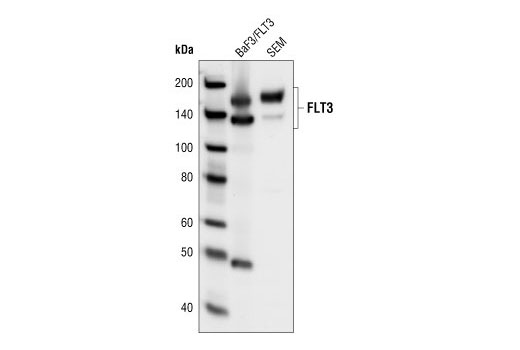 Western blot analysis of extracts from Baf3/FLT3 transfected cells and SEM leukemia cells, using FLT3 (8F2) Rabbit mAb.