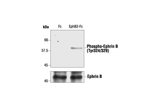 Polyclonal Antibody Western Blotting Axon Choice Point Recognition - count 5