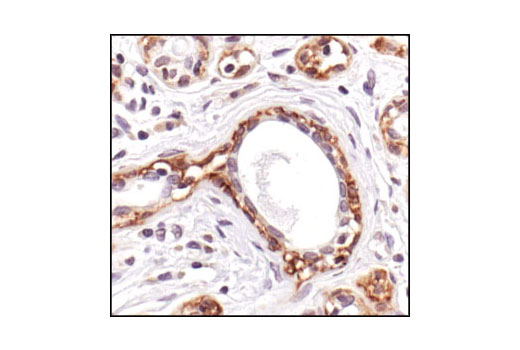 Immunohistochemical analysis of paraffin-embedded human breast carcinoma using Connexin 43 Antibody.