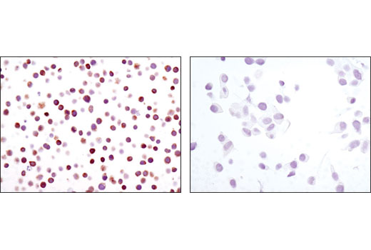 Immunohistochemical analysis of paraffin-embedded cell pellets, Jurkat (left) or LNCaP (right), using NFAT1 (D43B1) XP<sup>®</sup> Rabbit mAb.