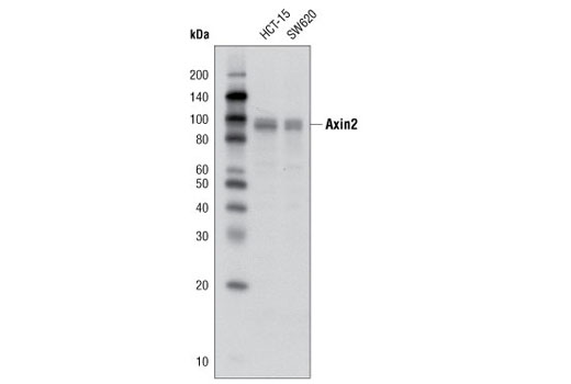 Western blot analysis of extracts from HCT-15 and SW620 cells using Axin2 (D48G4) Rabbit mAb.