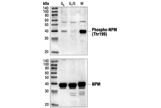 Western blot analysis of extracts from HeLa cells synchronized at various stages of the cell cycle, using Phospho-NPM (Thr199) Antibody (upper) or NPM Antibody #3542 (lower).