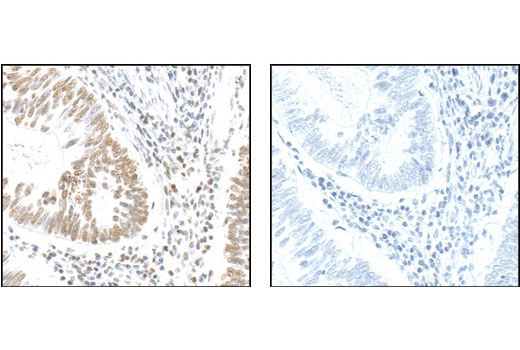 Im munohistochemical analysis of paraffin-embedded human colon carcinoma, using NPM Antibody in the presence of control peptide (left) or antigen-specific peptide (right).