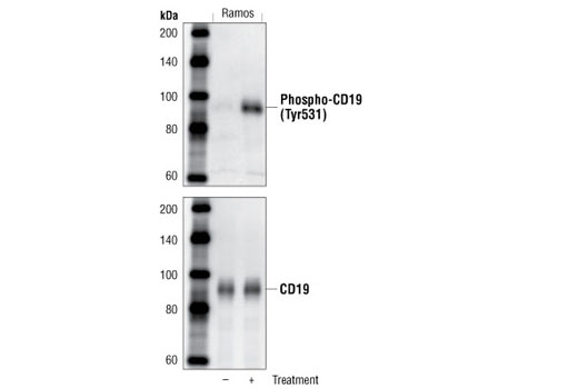 Western blot analysis of SDS extracts from untreated or anti-human IgM treated (12 µg/ml for 2 minutes) Ramos cells using Phospho-CD19 (Tyr531) Antibody (upper) and control CD19 Antibody #3574 (lower).