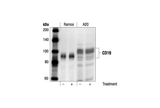Western blot analysis of SDS extracts from untreated or anti-human IgM treated (12 µg/ml for 2 minutes) Ramos cells and untreated or anti-mouse IgG treated (30 µg/ml for 2 minutes) A20 cells, using control CD19 Antibody.