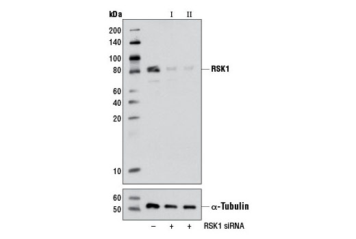 siRNA Transfection RSK1