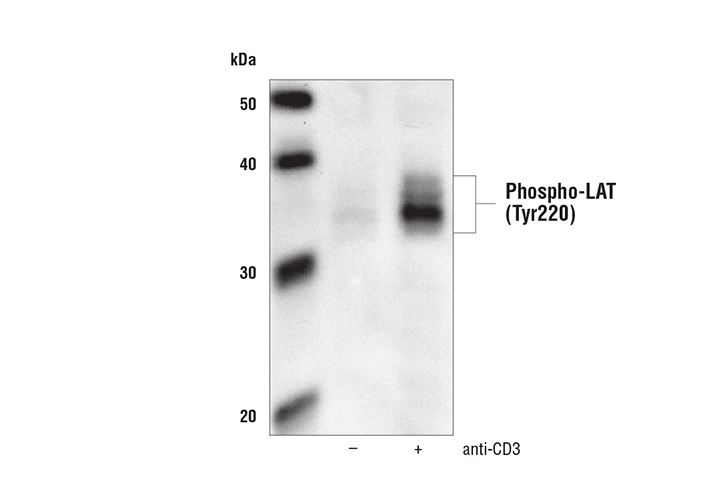 Western blot analysis of SDS extracts from untreated or anti-CD3 treated (10 µg/ml for 2 minutes) human Jurkat cells after overnight serum starvation using Phospho-LAT (Tyr191) Antibody.