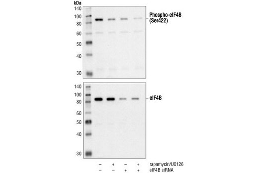 p70 S6 Kinase Substrates Antibody Sampler Kit - 1 Kit #2903