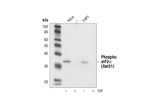 Western blot analysis of extracts from HeLa and THP-1 cells untreated or phosphatase treated, using Phospho-eIF2alpha (Ser51) (119A11) Rabbit mAb.