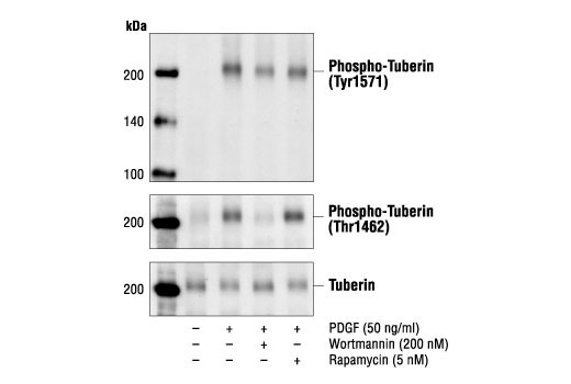 Western blot analysis of extracts from NIH/3T3 cells, untreated, PDGF-treated, PDGF and wortmannin-treated or PDGF and rapamycin-treated, using Phospho-Tuberin/TSC2 (Tyr1571) Antibody (top), Phospho-Tuberin/TSC2 (Thr1462) Antibody #3611 (middle) or Tuberin/TSC2 Antibody #3612 (bottom).