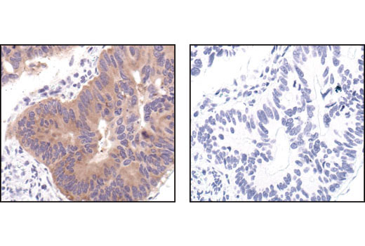Immunohistochemical analysis of paraffin-embedded human colon carcinoma, using Acetyl CoA Carboxylase Antibody in the presence of control peptide (left) or AcetylCoA Carboxylase Blocking Peptide #1062 (right).