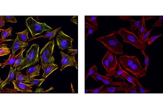 Confocal immunofluorescent images of HeLa cells, untreated (left) or phosphatase-treated (right), labeled with Phospho-Myosin Light Chain 2 (Ser19) Antibody (green). Actin filaments have been labeled with Alexa Fluor® 555 phalloidin (red). Blue pseudocolor = DRAQ5<sup>®</sup> #4084 (fluorescent DNA dye).