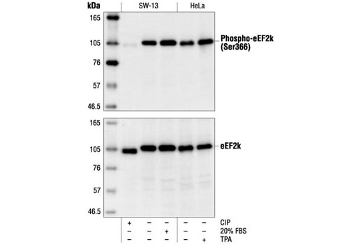 Monkey Elongation factor-2 Kinase Activity