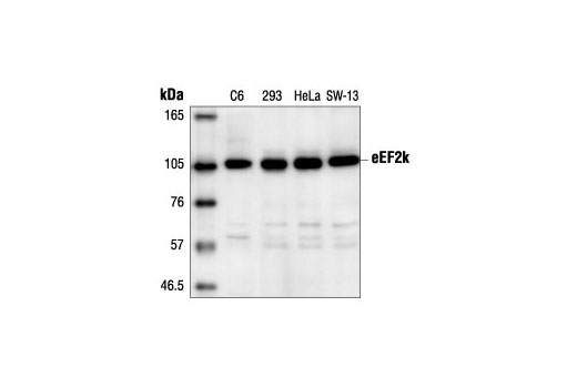 Western blot analysis of extracts from C6, 293, HeLa and SW-13 cells using eEF2k Antibody.