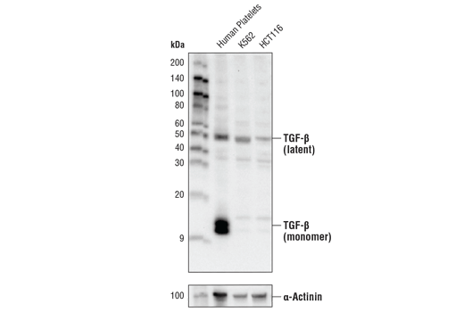 Western blot analysis of extracts from human platelets, K562, and HCT116 lysate using TGF-β Antibody (upper) and</p><p>α-Actinin (D6F6) XP<sup>®</sup> Rabbit mAb (lower) #6487.