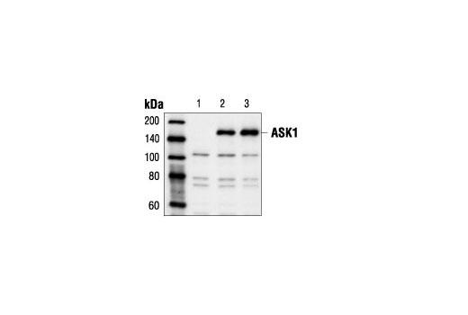 Polyclonal Antibody - ASK1 Antibody - Western Blotting, UniProt ID Q99683, Entrez ID 4217 #3762, Ask1