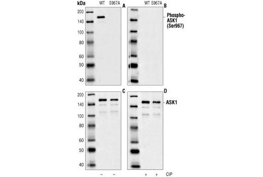 Polyclonal Antibody - Phospho-ASK1 (Ser967) Antibody - Western Blotting, UniProt ID Q99683, Entrez ID 4217 #3764, Ask1