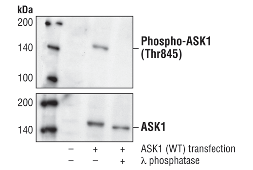 Western blot analysis of extracts from COS cells, untransfected (lane 1), or transfected with wild-type ASK1 (lanes 2,3), using Phospho-ASK1 (Thr845) Antibody (upper) or ASK1 Antibody #3762 (lower). In lane 3, the lysate was treated with lamda phosphatase to demonstrate phospho-specificity of Phospho-ASK1 (Thr845) Antibody.