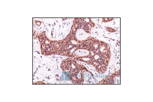 Monoclonal Antibody Immunohistochemistry Paraffin Glycogen Biosynthetic Process