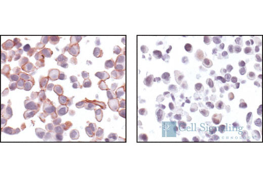 Immunohistochemical analysis using Phospho-Akt (Ser473) (736E11) Rabbit mAb on SignalSlide (R) Phospho-Akt (Ser473) IHC Controls #8101 (paraffin-embedded LNCaP cells, untreated (left) or LY294002-treated (right).