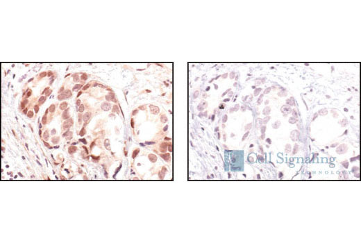 Immunohistochemical analysis of paraffin-embedded human prostate carcinoma, using Phospho-Akt (Ser473) (736E11) Rabbit mAb preincubated with an irrelevant peptide (left) or Phospho-Akt (Ser473) Blocking Peptide (#1140) (right).