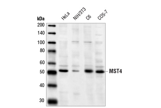 Western blot analysis of extracts from various cell lines using MST4 Antibody.