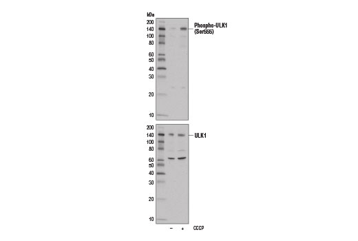 Western blot analysis of extracts from MCF7 cells, untreated (-) or treated with carbonyl cyanide 3-chlorophenylhydrazone (CCCP) (100 μM, 2 hr; +), using Phospho-ULK1 (Ser555) (D1H4) Rabbit mAb (upper) or ULK1 (D8H5) Rabbit mAb #8054 (lower).