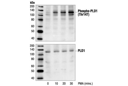 Western blot analysis of extracts from HeLa cells, untreated or PMA-treated for the indicated times, using Phospho-PLD1 (Thr147) Antibody (upper) or PLD1 Antibody #3832 (lower).