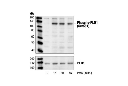 Western blot analysis of extracts from C6 cells, untreated or PMA-stimulated for the indicated times, using Phospho-PLD1 (Ser561) Antibody (upper) or PLD1 Antibody #3832 (lower).