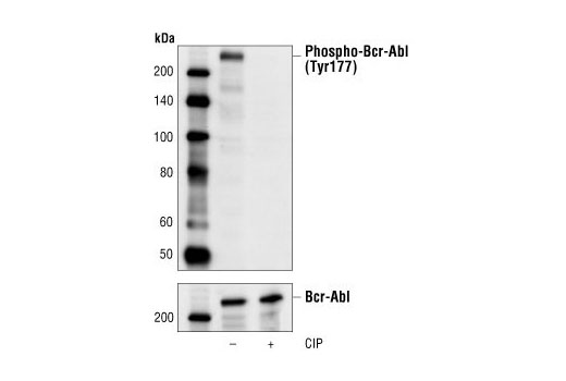 Western blot analysis of extracts from K562 cells, untreated or calf intestinal phosphatase (CIP)-treated, using Phospho-Bcr (Tyr177) Antibody (upper) or Bcr Antibody #3902 (lower).
