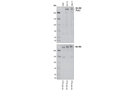 Western blot analysis of various cell lysates from cell lines expressing Bcr-Abl fusion proteins, using Bcr-Abl (b2a2 Junction Specific) (L99H4) Mouse mAb (upper) and c-Abl Antibody #2862 (lower).