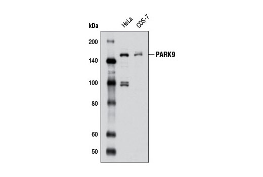 Western blot analysis of extracts from HeLa and COS-7 cells using PARK9 Antibody.