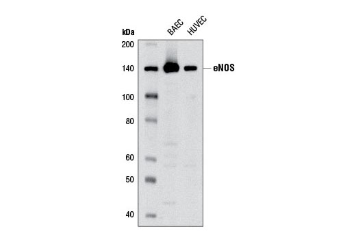 Western blot analysis of extracts from BAEC and HUVEC cells using eNOS (6H2) Mouse mAb.