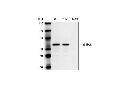 Polyclonal Antibody - p62Dok Antibody - Western Blotting, UniProt ID Q99704, Entrez ID 1796 #3912