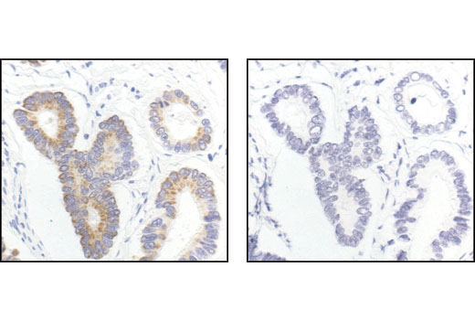 Immunohistochemical analysis of paraffin-embedded human colon carcinoma, using Gα (pan) Antibody in the presence of control peptide (left) or antigen specific peptide (right).