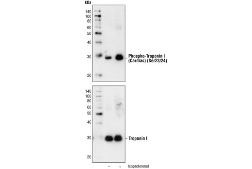 Western blot analysis of extracts from mouse myocytes, untreated or stimulated with isoproterenol, using Phospho-Troponin I (Cardiac) (Ser23/24) Antibody (upper) or Troponin I Antibody #4002 (lower).