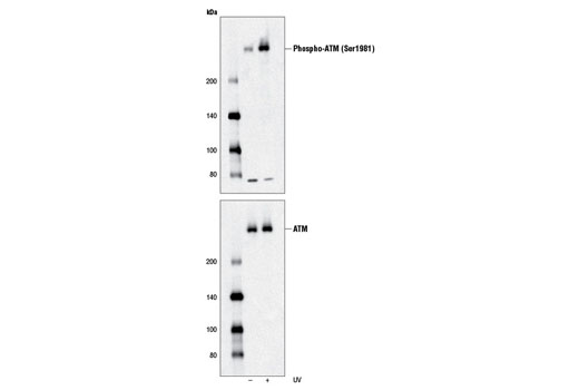 Double Strand Breaks (DSB) Repair Antibody Sampler Kit, UniProt ID Q13315, Entrez ID 472 #9653