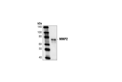 Polyclonal Antibody Western Blotting Blood Vessel Maturation