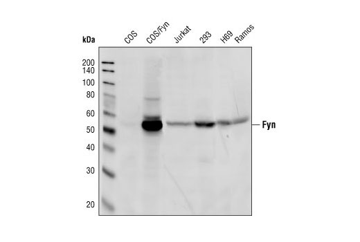 Western blot analysis of cell extracts from various cell lines, using Fyn Antibody.