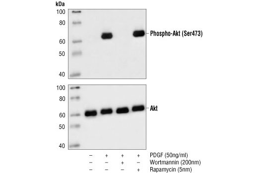 Western blot analysis of extracts from NIH/3T3 cells, pretreated with wortmannin #9951 and/or rapamycin #9904 as indicated, then untreated or PDGF-treated, using Phospho-Akt (Ser473) (587F11) Mouse mAb (upper) or Akt Antibody #9272 (lower).