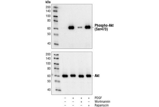 Western blot analysis of extracts from untreated or PDGF-treated NIH/3T3 cells, pretreated with wortmannin #9951 and/or rapamycin #9904 as indicated, using Phospho-Akt (Ser473) (193H12) Rabbit mAb (upper) or Akt Antibody #9272 (lower).