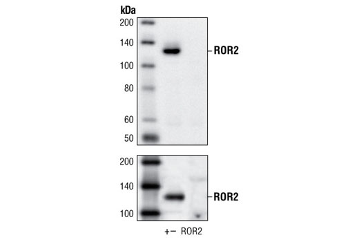 Polyclonal Antibody Western Blotting Protein-Tyrosine Kinase Activity